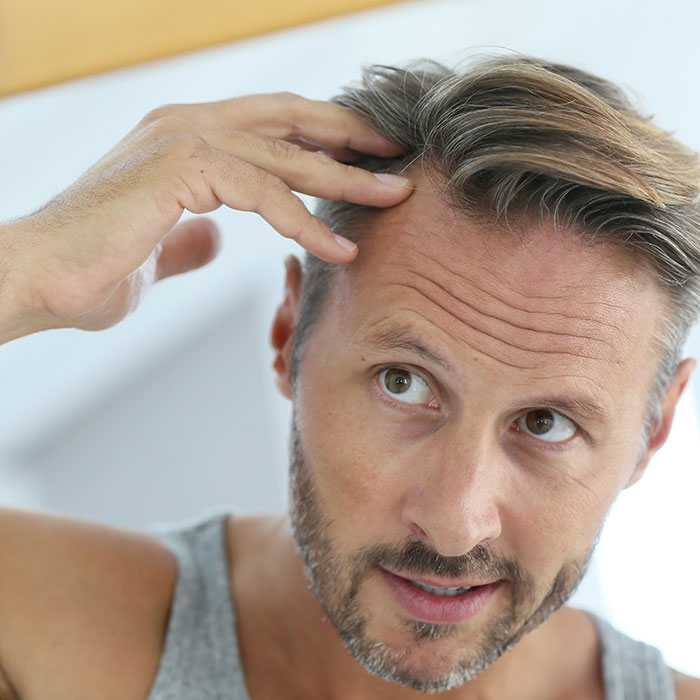 Man Concerned about Hair Loss